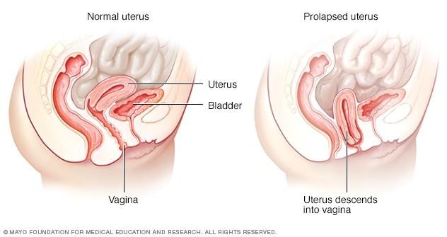 images of rectocele prolapse