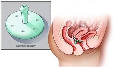 Small Bowel prolapse (enterocele) – Mallanets Tech Textile